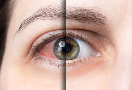 Болят глаза при надавливании и моргании