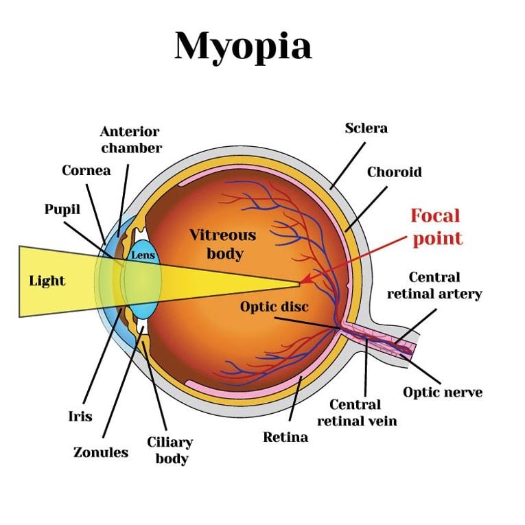 Myopic-Eyes-min.jpg