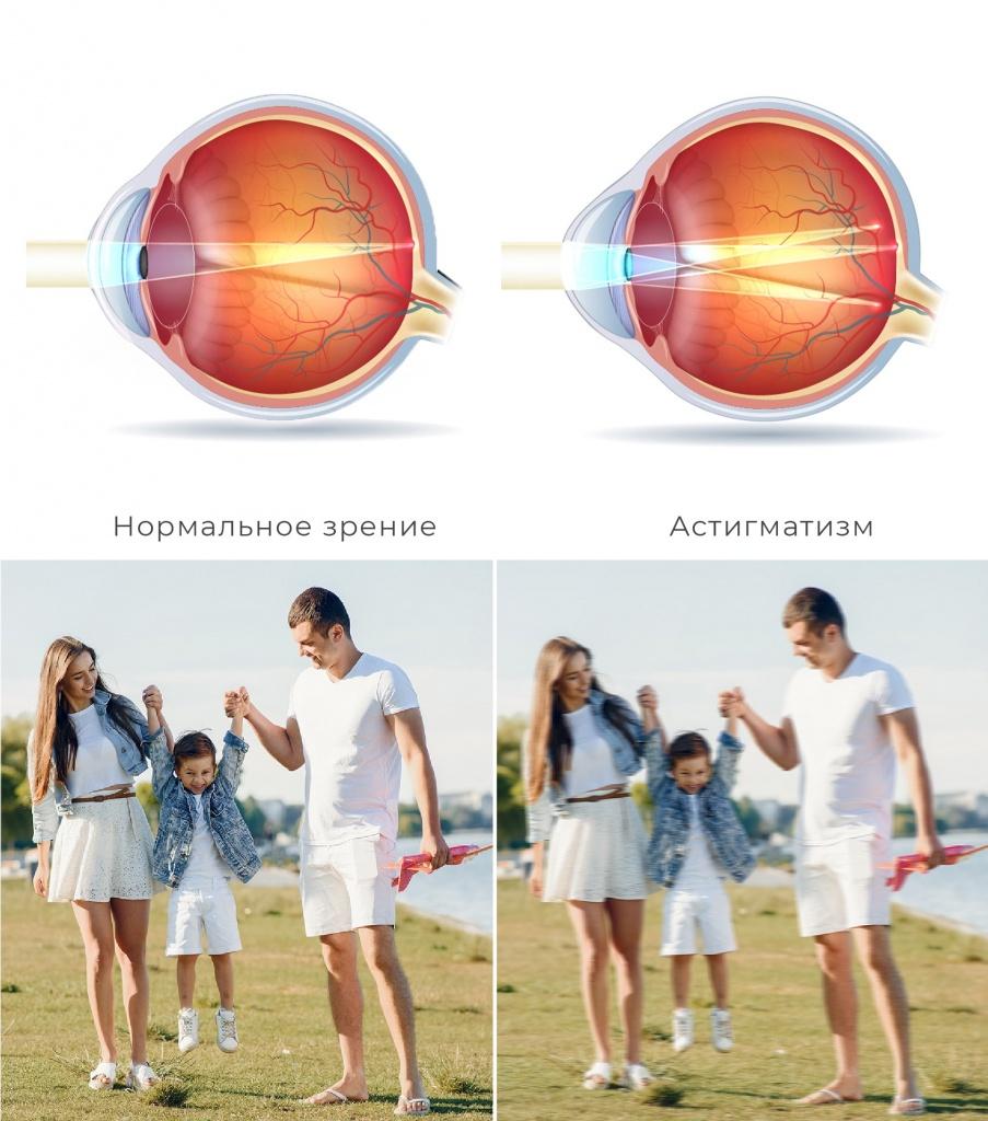 сравнение нормального зрения и астигматизма